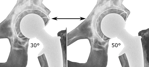 small resolution of acetabular inclination is normally between 30 and 50 a larger angle increases the risk of dislocation