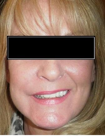 File:Facial swelling periodontal bone graft.jpg ...