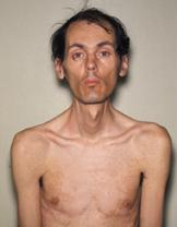 https://i0.wp.com/upload.wikimedia.org/wikipedia/commons/9/95/Myotonic_dystrophy_patient.JPG