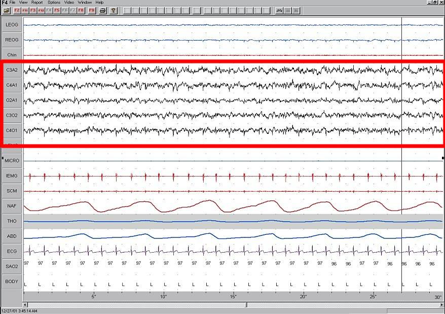 Normal Sleep Cycle Diagram Elektroencefalografie Wikipedie
