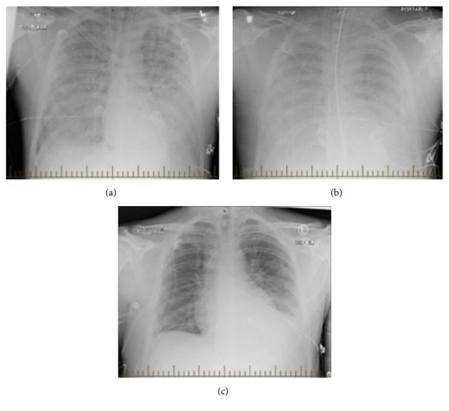 Radiographic progression of hantavirus pulmonary syndrome in patient.jpg