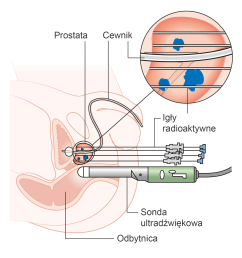file diagram showing how you have high dose brachytherapy for prostate cancer cruk 419 pl png [ 1563 x 1650 Pixel ]
