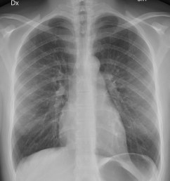 chest radiograph [ 1929 x 2207 Pixel ]