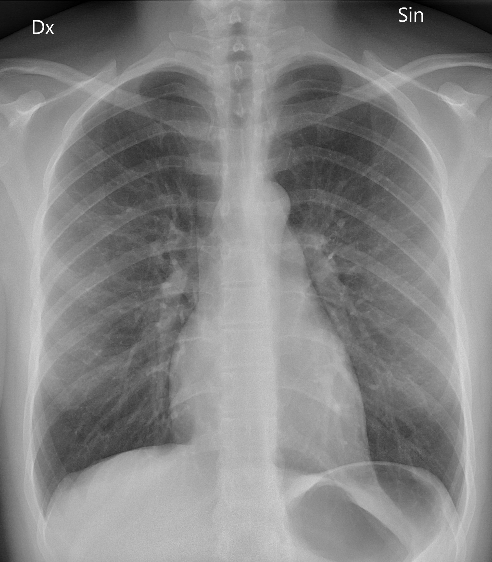 hight resolution of chest radiograph