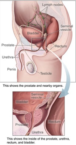 Prostate cancer anatomy