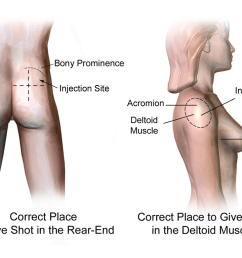 file injection sites intramuscular rear end deltoid png [ 1024 x 768 Pixel ]