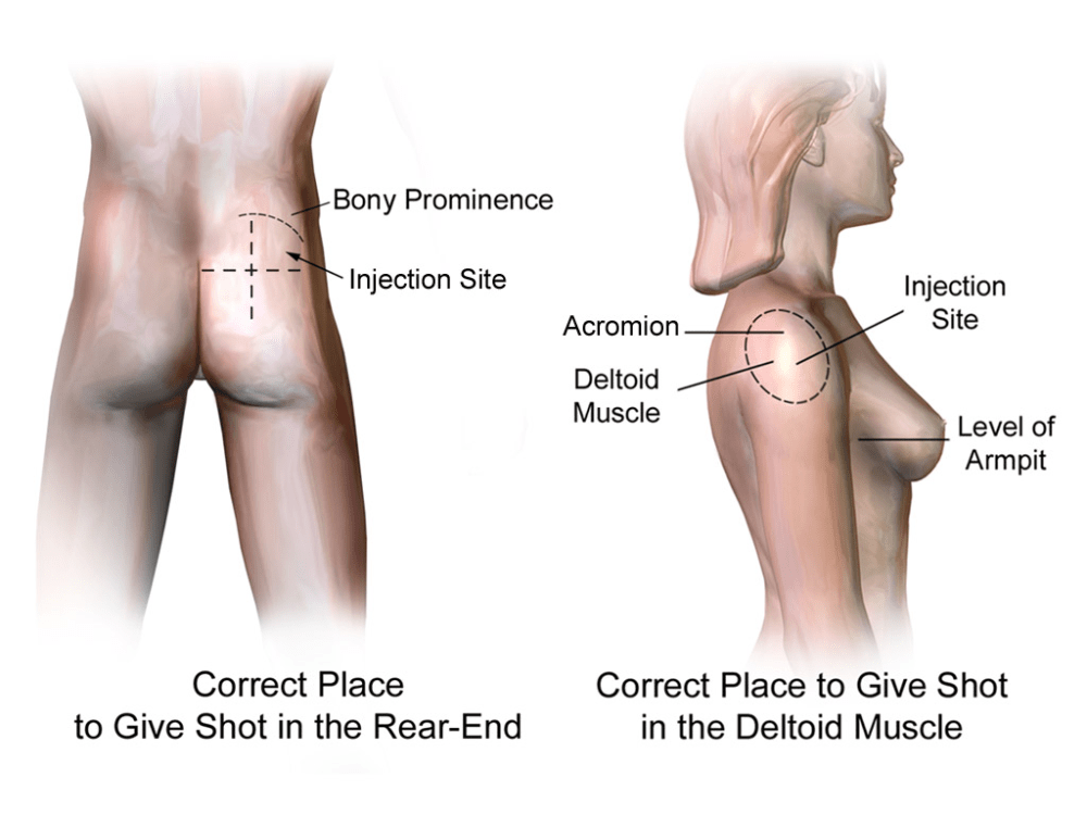 medium resolution of file injection sites intramuscular rear end deltoid png