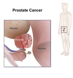 file prostate cancer png [ 1200 x 1200 Pixel ]