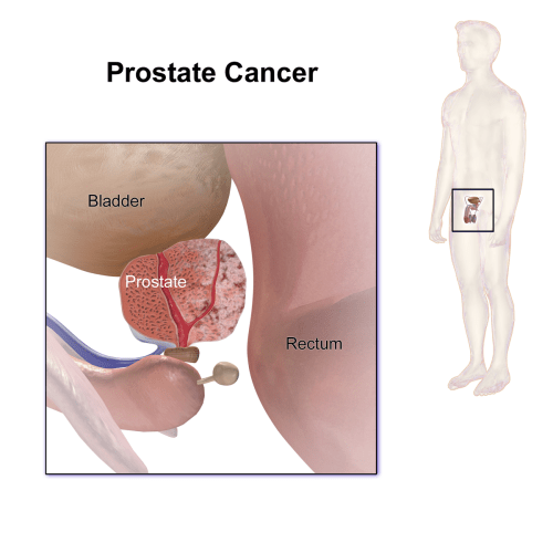 small resolution of file prostate cancer png