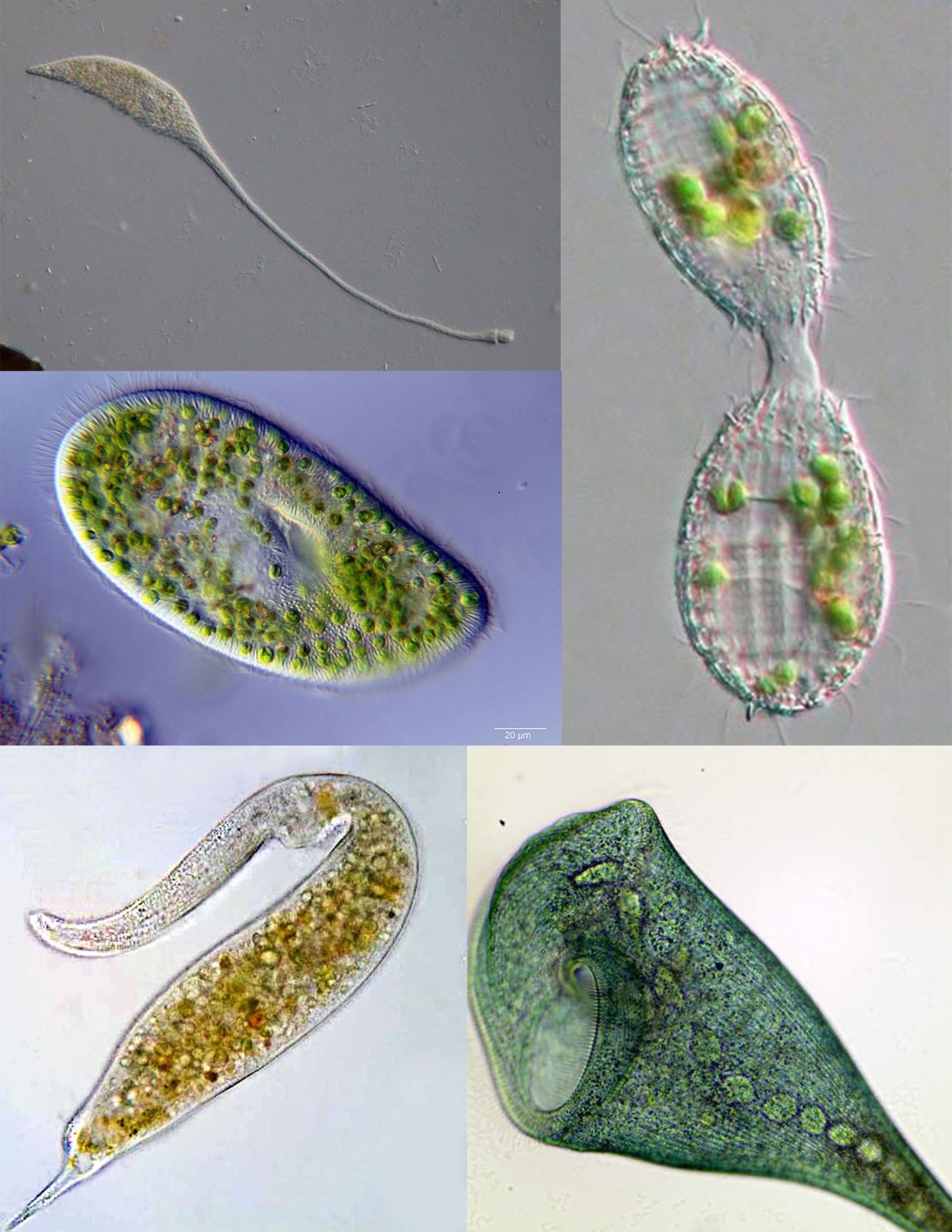 hight resolution of ciliate