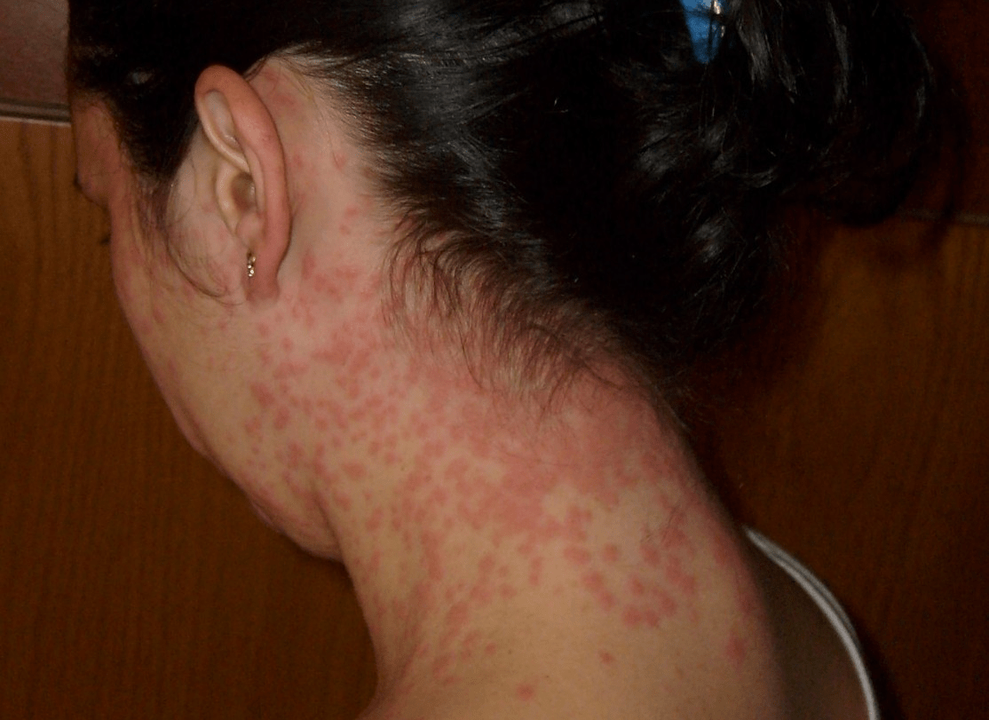 FileEuproctis Chrysorrhoea skin rash cuttedpng