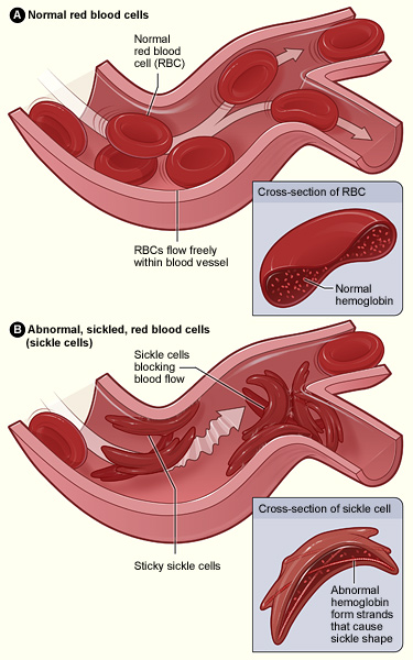 Sickle Cell Disease  Wikipedia
