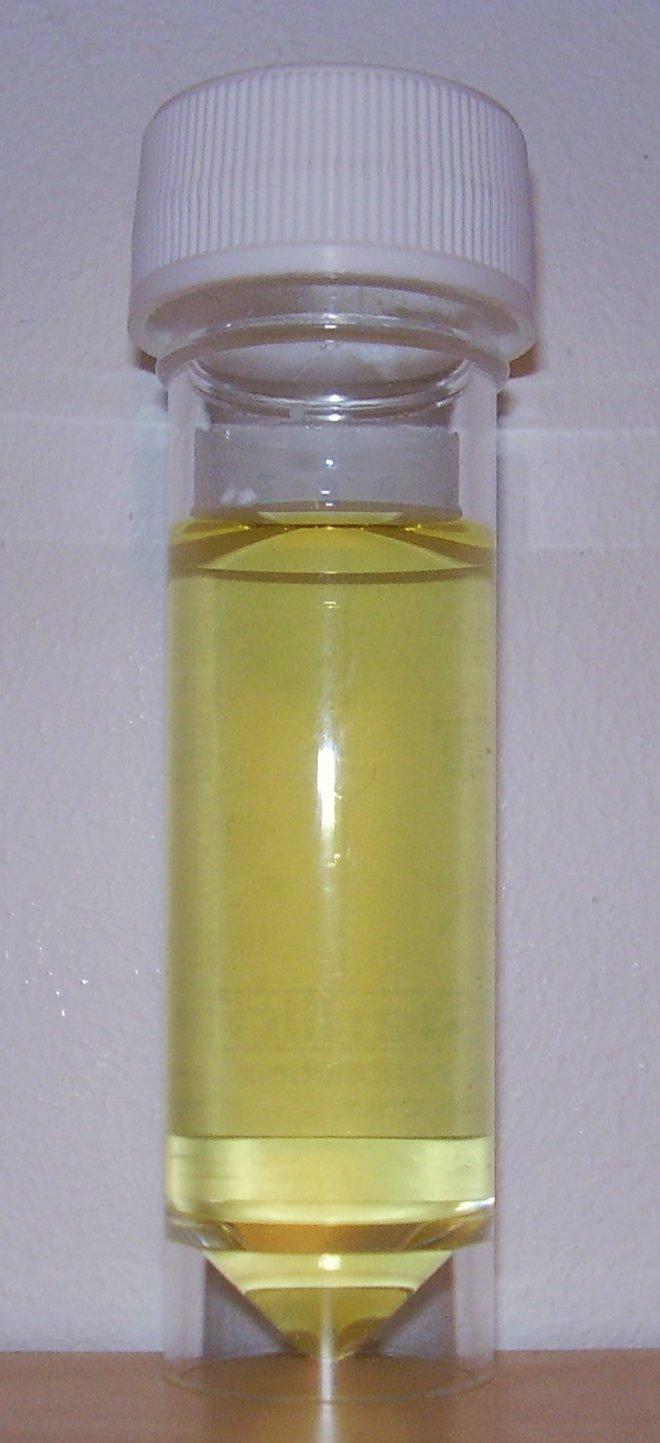 hight resolution of urine