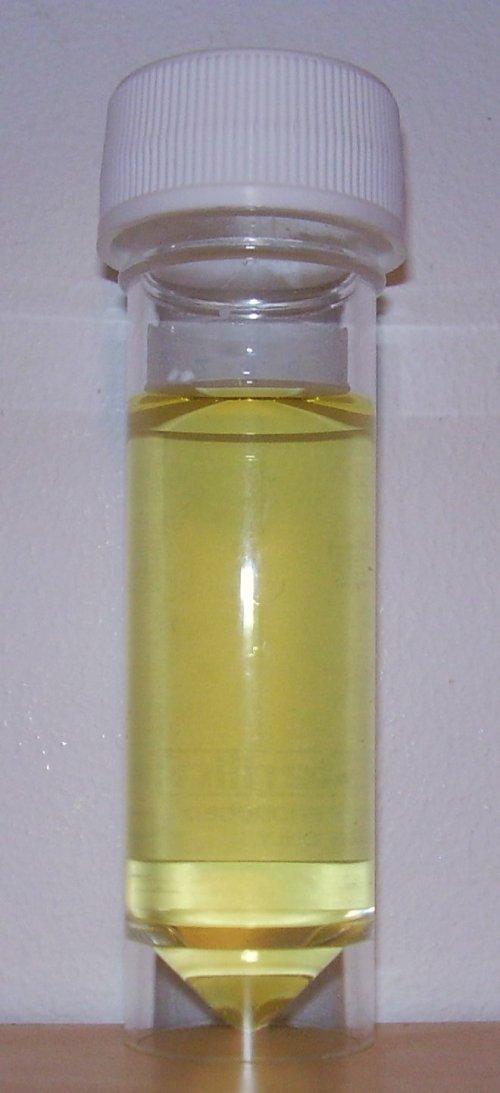 small resolution of urine