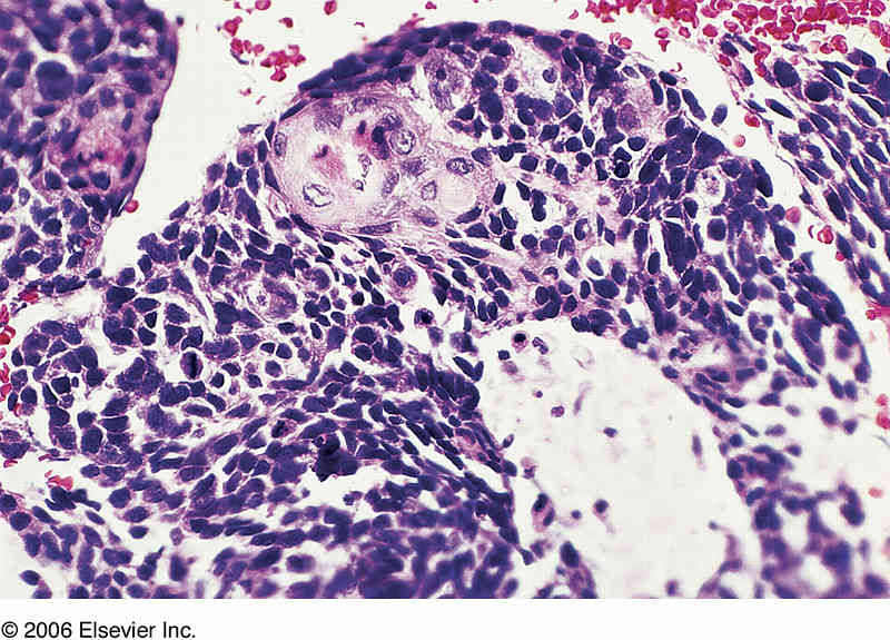 Combined small-cell lung carcinoma - Wikipedia