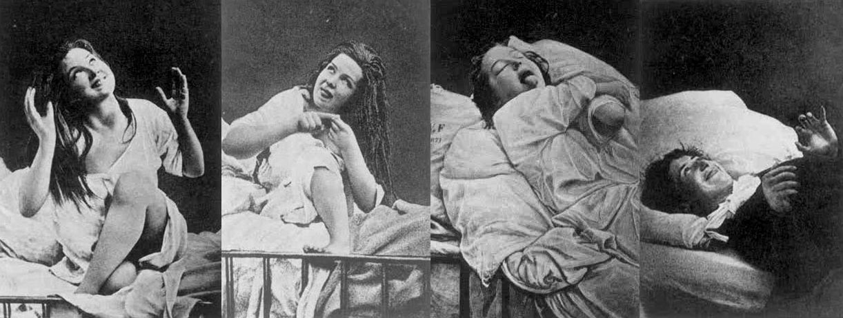 Hysteria patients under hypnosis