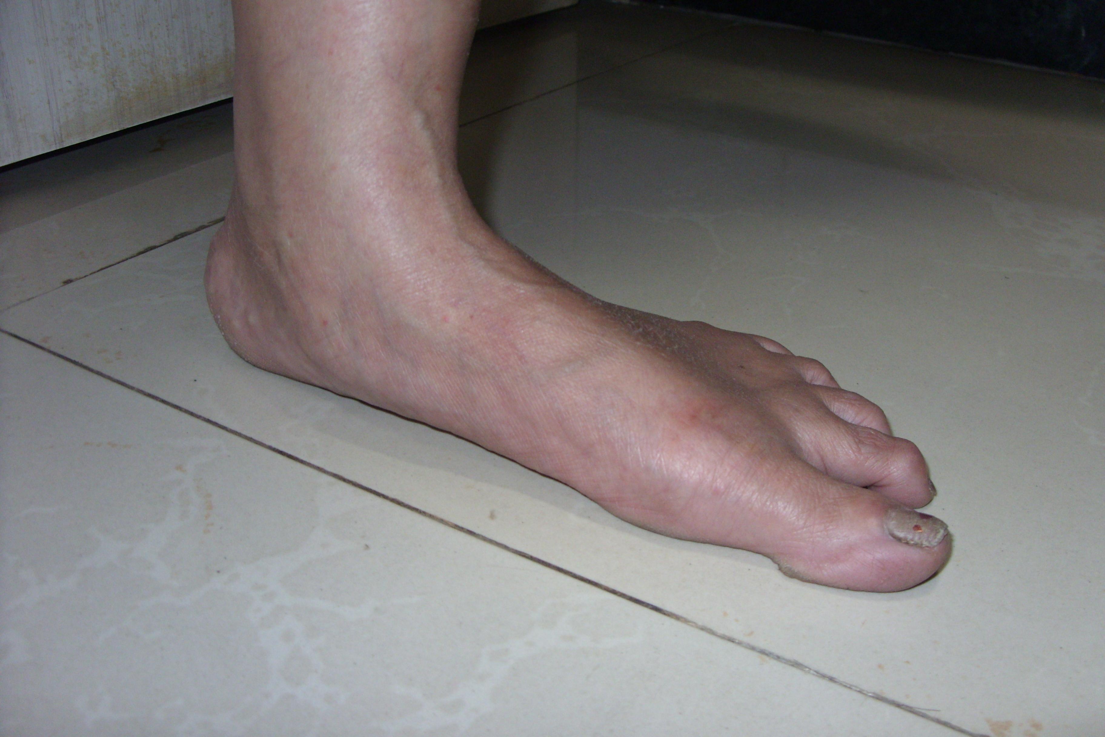 pes planus symptoms