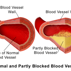 Carotid Artery Diagram Trailer Light Wire Atheroma Wikipedia