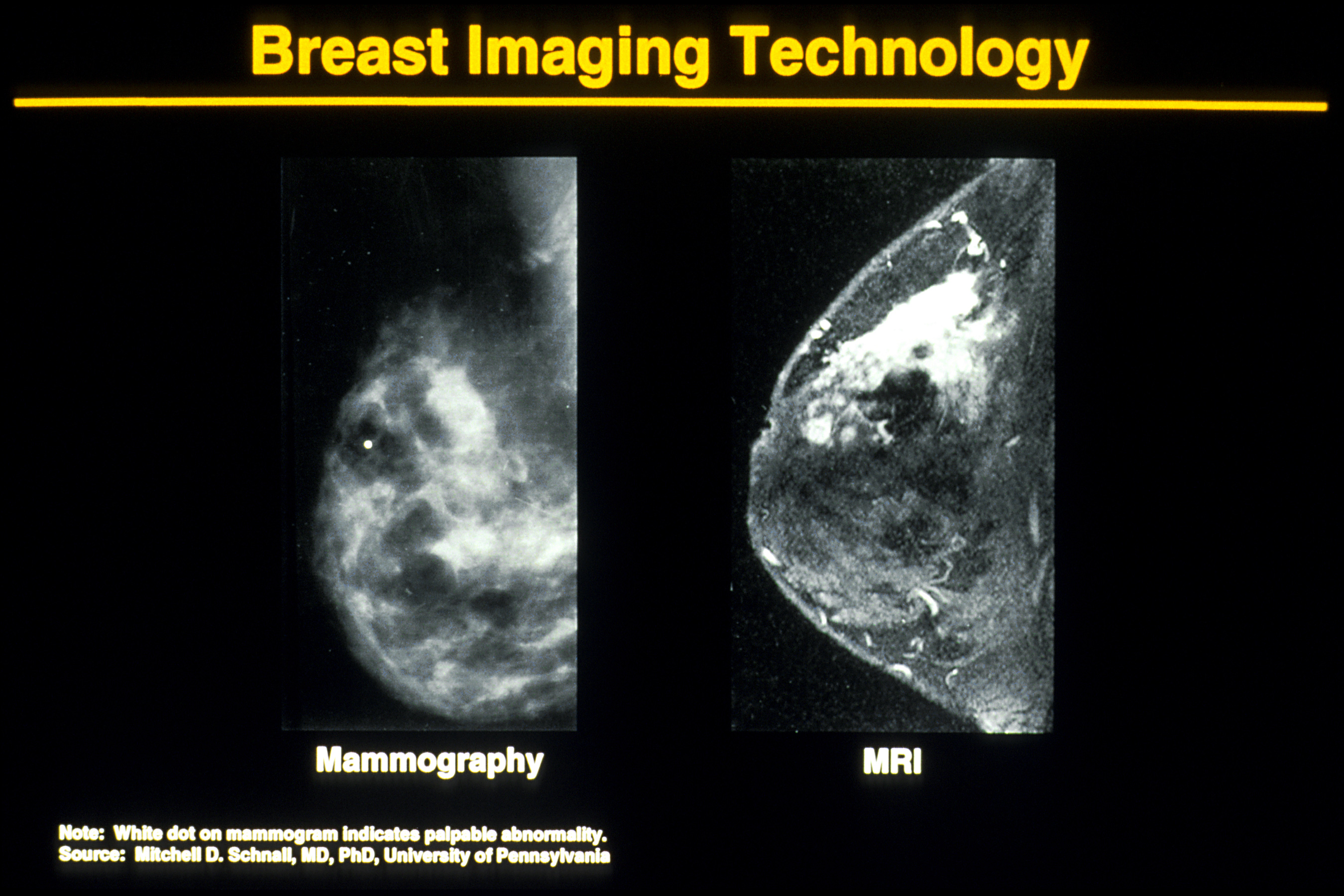 Why (sometimes) I'll opt out of mammograms and do this ...