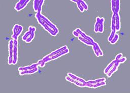 DNA damage resulting in multiple broken chromo...