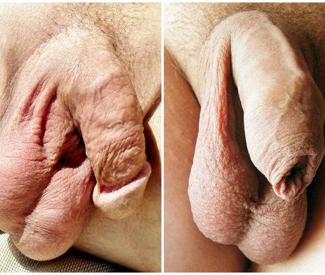 Filecircumcised And Uncircumcised Penis Jpg