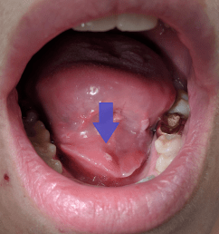 diagram of infected salivary gland [ 2925 x 3007 Pixel ]
