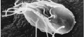 Parasitic excavate (Giardia lamblia)