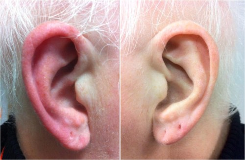 small resolution of outside ear diagram