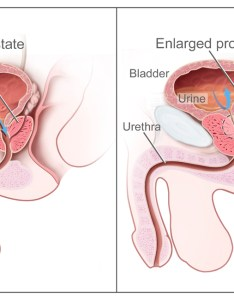 Benign prostatic hyperplasia also wikipedia rh enpedia