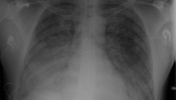 Chest Xray 40 yr old male acute respiratory distress syndrome as a complication of murine typhus. 13-1421-F1.jpg