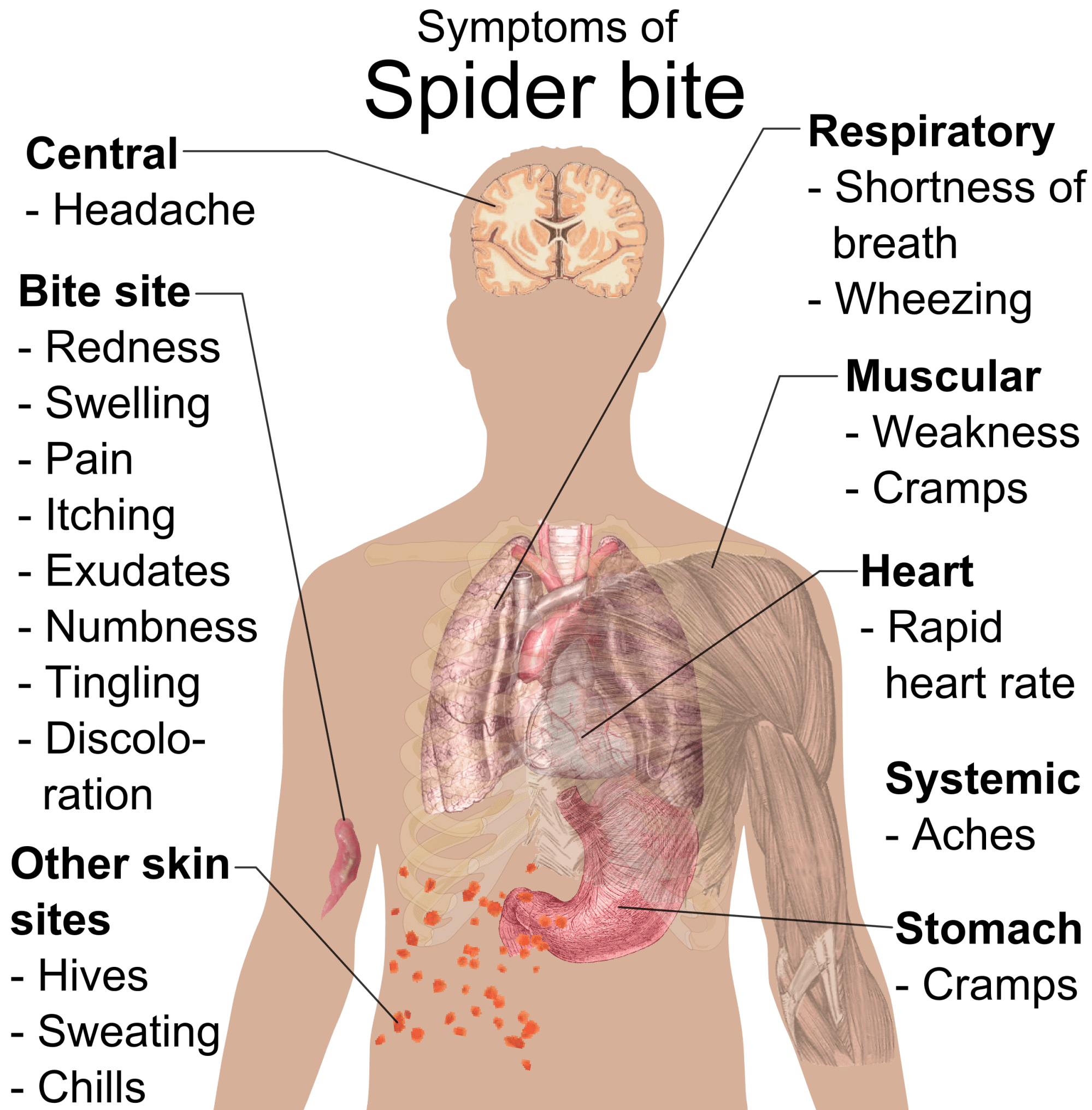 hight resolution of  symptoms of spider bite png
