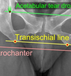 leg length discrepancy after hip replacement is calculated as the vertical distance between the middle of the minor trochanters using the acetabular tear  [ 2272 x 1004 Pixel ]