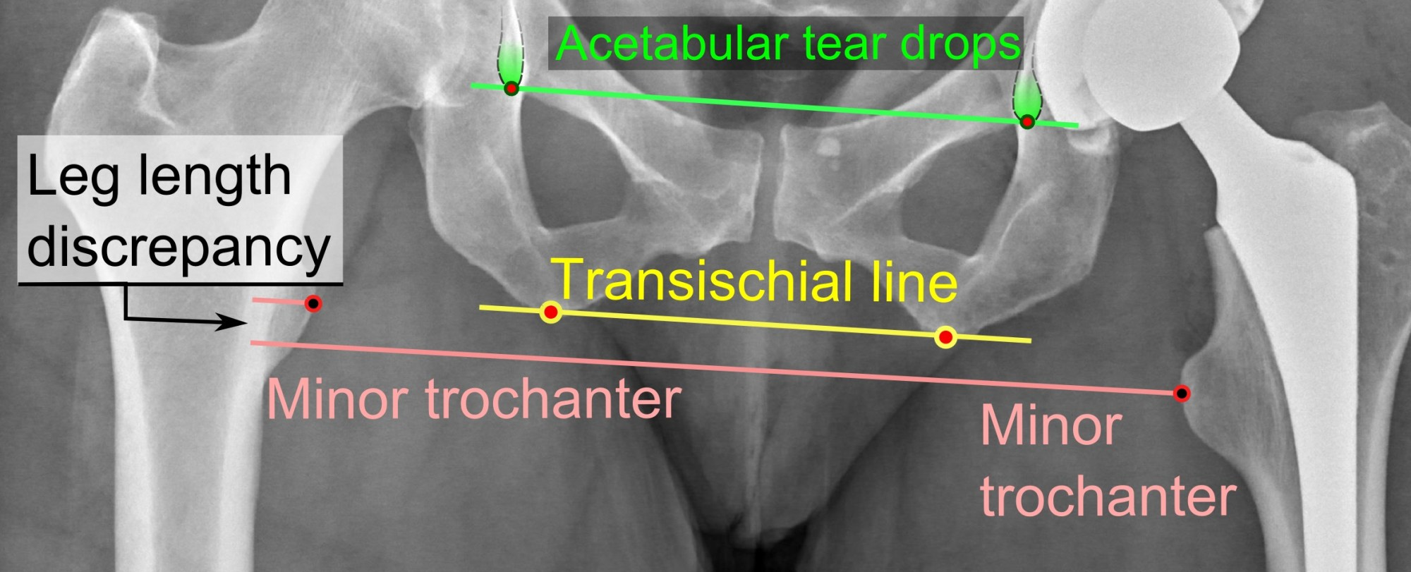 hight resolution of leg length discrepancy after hip replacement is calculated as the vertical distance between the middle of the minor trochanters using the acetabular tear