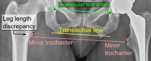 small resolution of leg length discrepancy after hip replacement is calculated as the vertical distance between the middle of the minor trochanters using the acetabular tear