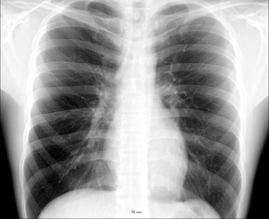 cat skeleton diagram labeled 2005 honda pilot fuse box thorax - wikipedia