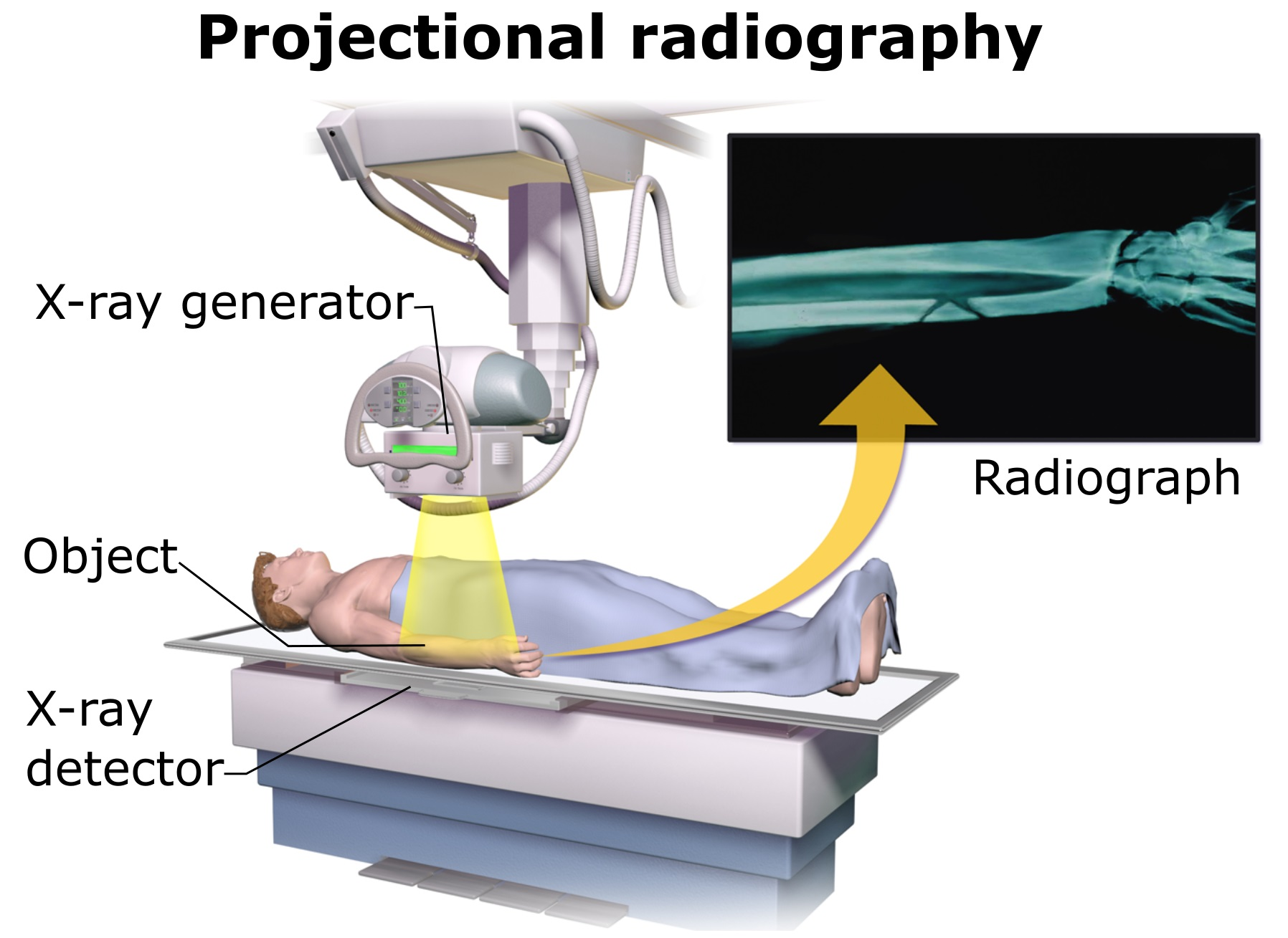 hight resolution of x ray detector