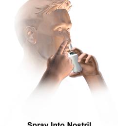 diagram of nasal spray application [ 768 x 1024 Pixel ]