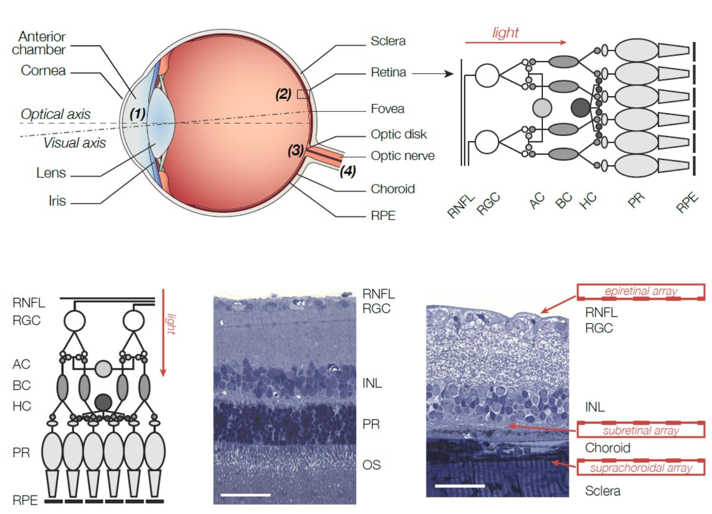 diagram of artificial eye 2006 dodge ram infinity radio wiring retinal implant - wikipedia