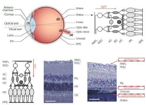 small resolution of e nose block diagram