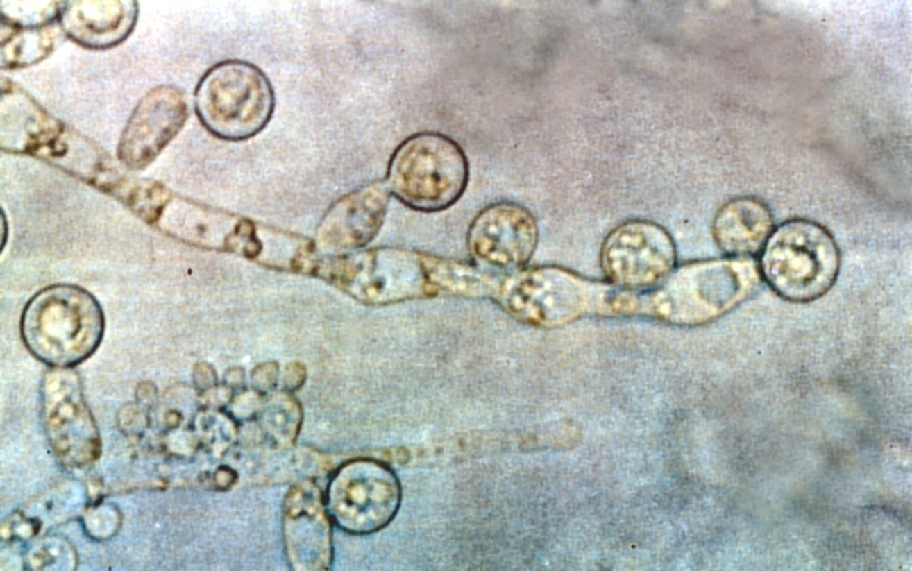 Description Candida albicans 2.jpg