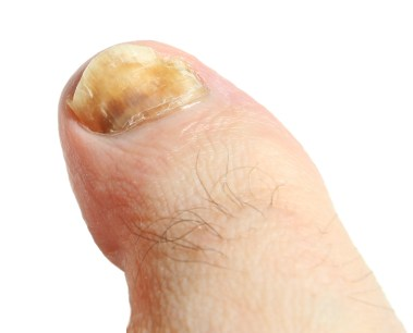 moderate signs of nail fungus, how to get rid of nail fungus, toenail fungus treatments
