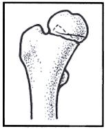 Line drawing of fractured hip