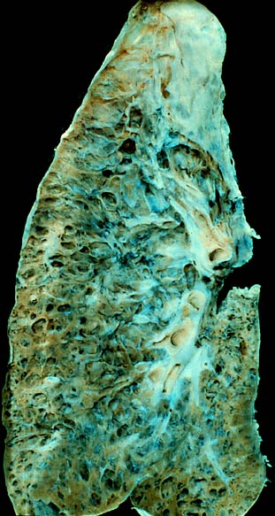 Interstitial lung disease - Wikipedia