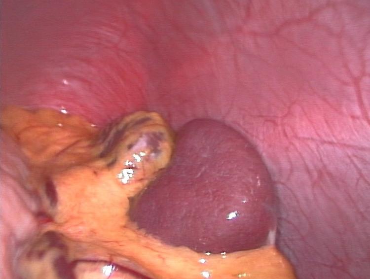 File:Spleen.jpg