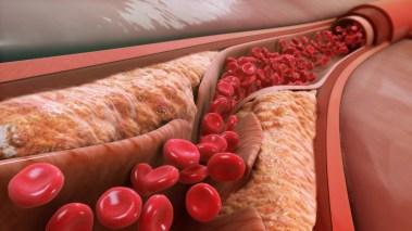 Холестерол   Наслаги во артериите   Здебелување на артериите   Стеснување на артериите