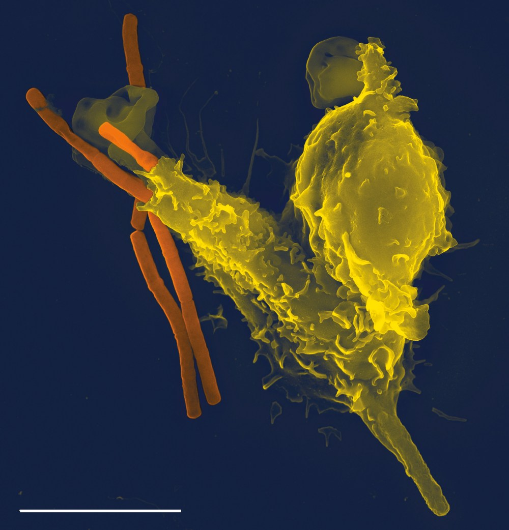 medium resolution of long rod shaped bacteria one of which has been partially engulfed by a larger
