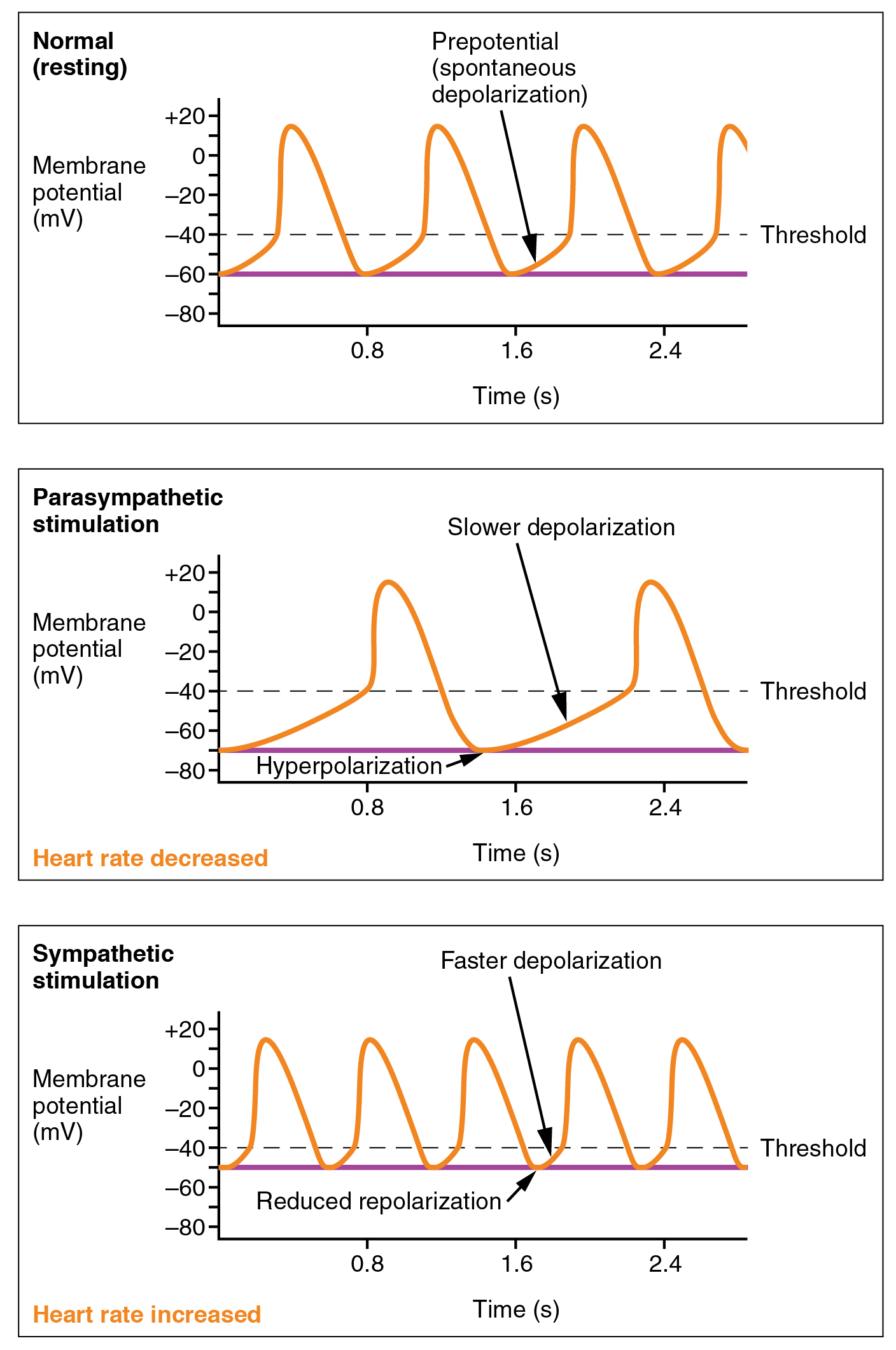 File Depolarization In Sinus Rhythm