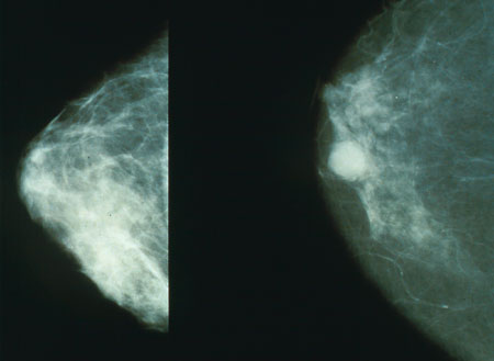 Breast without cancer (Left) / Breast with cancer (Right)