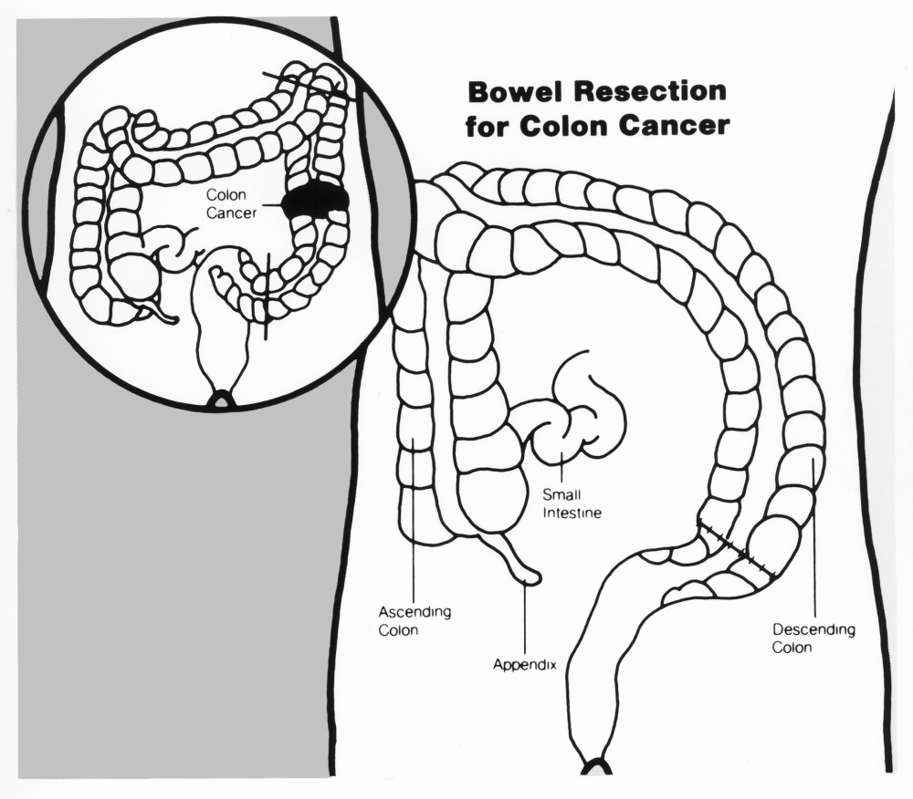medium resolution of abdominoperineal resection diagram
