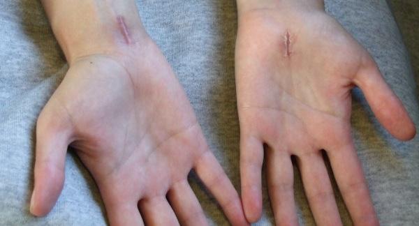 File:Carpal tunnel scars.jpg